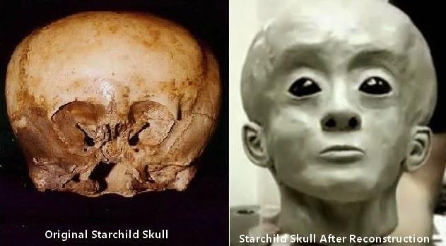 El cráneo «Starchild» El niño de las estrellas.