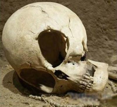 Conozca la lista de los cráneos más extraños que se han hallado alrededor del mundo