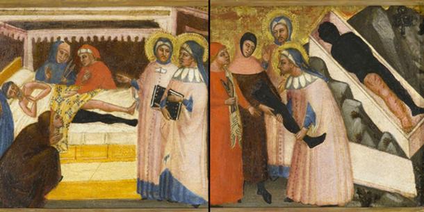 Un milagro de la antigua medicina: transplante de pierna documentado en una pintura medieval