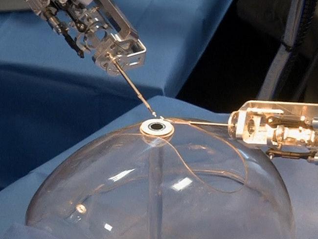 Ciencia: El pequeño robot que opera cataratas con mayor precisión que un cirujano