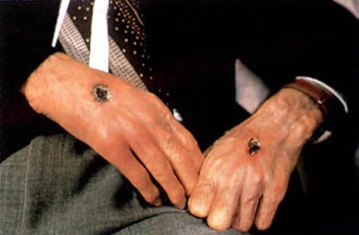 Misterio De Los Estigmatizados: Marcas de Fe