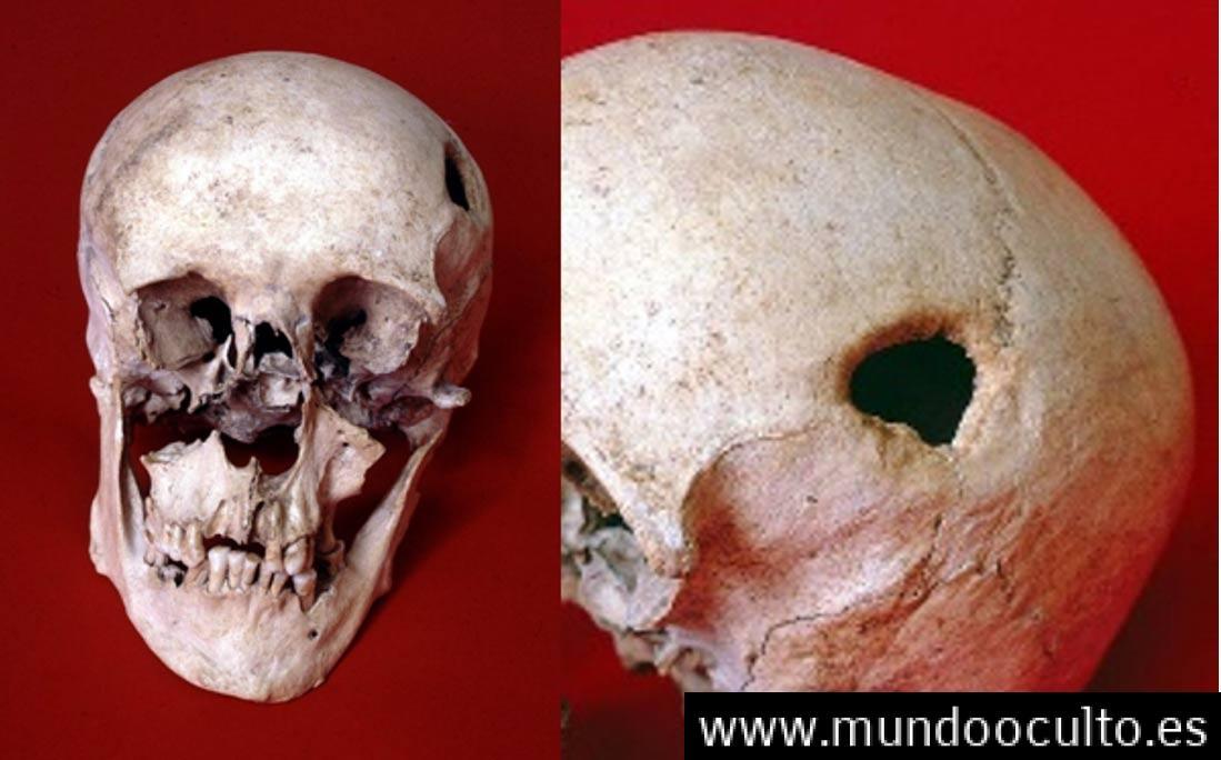 El hombre medieval con deformidad facial pudo haber tenido la cabeza perforado en un exorcismo