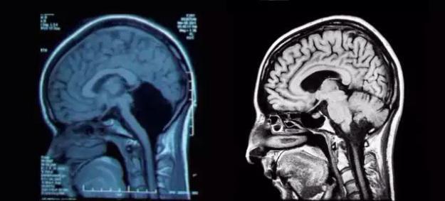 El extraño caso de una mujer sin cerebelo desconcierta a los médicos