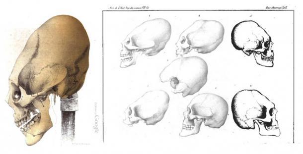 adios al paradigma de la deformacion craneal artificial?