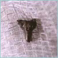 Implantes extraterrestres, ¿un sistema de rastreo o influyen en la conducta?