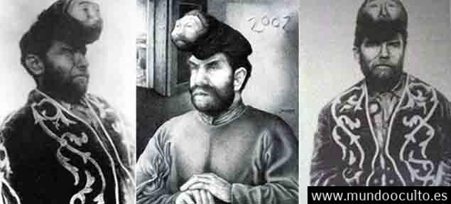 La extraordinaria historia del mexicano de dos cabezas