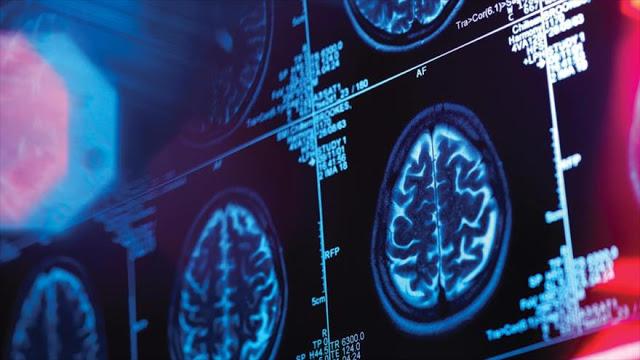 Según un Nuevo estudio: Nuestro cerebro puede predecir el futuro