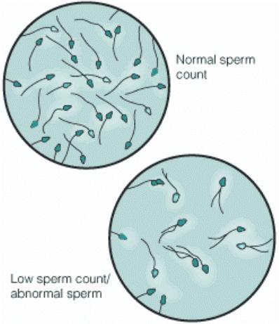 Advertencia científica: la mala calidad del esperma de los hombres podría extinguir la especie humana