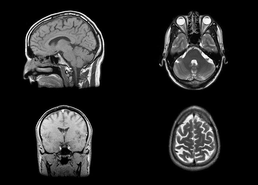 Empresa recibe autorización para revivir el cerebro después de la muerte