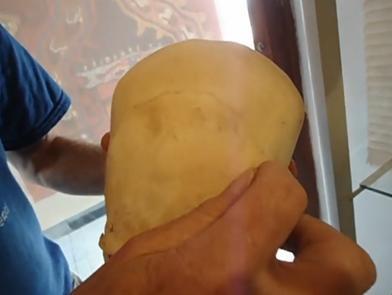 Diferencias entre los cráneos de la cabeza cónica y los nuestros