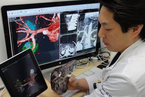 Imprimen tejidos de hígado humano en 3-D