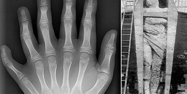 Los ángeles caídos de 6 Dedos y mas de 3 Metros de altura descubiertos en Irlanda