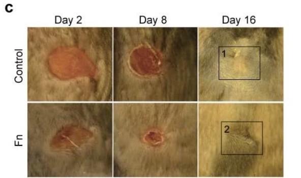 ¿Por qué se diseñan biomateriales basados en las propiedades de la piel del feto?