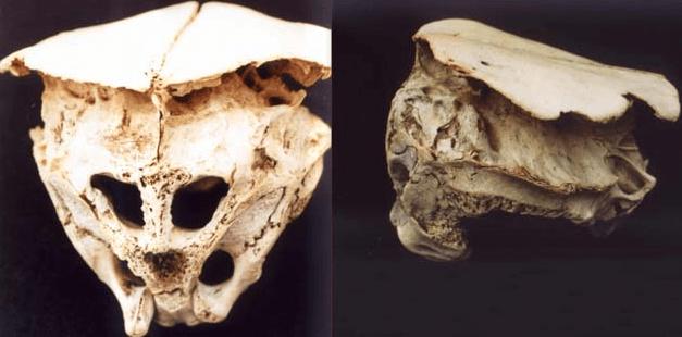 Los 2 Cráneos Más extraños que la ciencia NO ha podido explicar ¿Son extraterrestres?