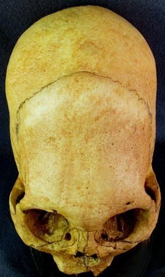 Cráneos alargados: diferencias. ¿Por qué no son humanos?