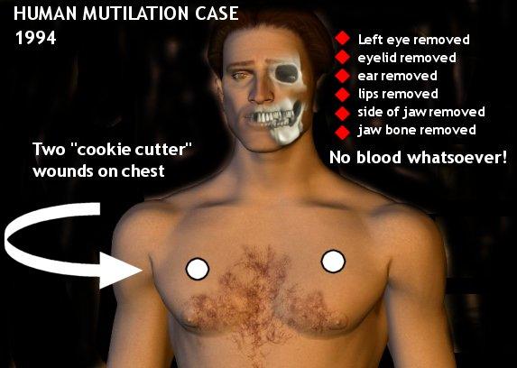 El terrible caso de abducción Extraterreste que termino en una mutilación ¿Los ET son realmente buenos?