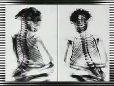 Momia confirmaria la existencia de una raza perdida de gente pequeña en Norteamerica