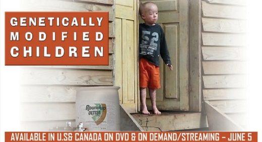 """Niños genéticamente modificados"""": Las 'monstruosas' deformaciones infantiles causadas por los agroquímicos en Argentina"""