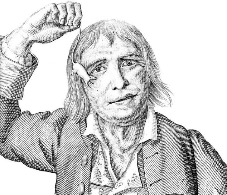 Tarrare, el hombre de hambre insaciable