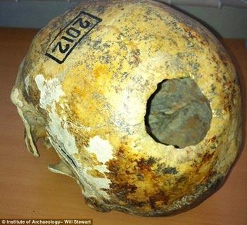 Nómadas antiguos Pazyryk realizaron cirugía craneana muy avanzada en Siberia