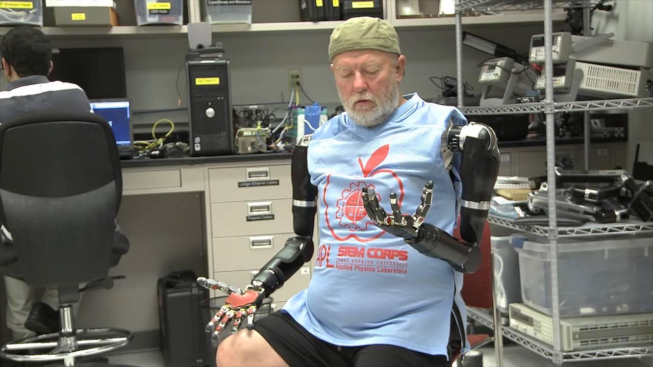 ROBÓTICA. Esta increíble prótesis robótica doble se controla con el pensamiento.