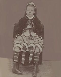 Myrtle Corbin - La mujer de cuatro piernas