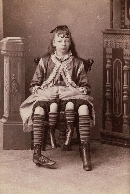 Myrtle Corbin – La mujer de cuatro piernas