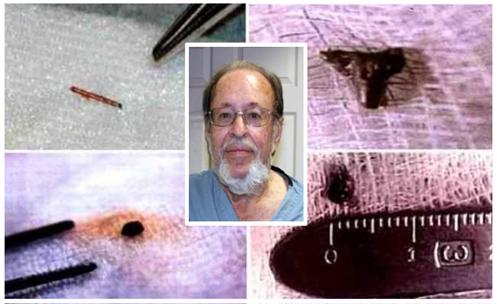 """EVIDENCIA FÍSICA: El resultado de 17 cirugías son la extracción de trece extraños """"implantes""""."""