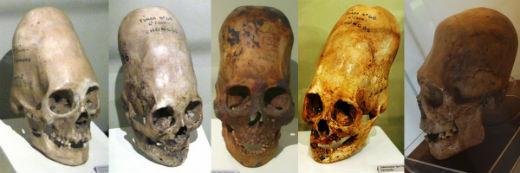 El análisis de ADN de los cráneos alargados de Paracas ha sido publicado. Resultados increibles