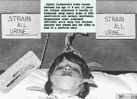 Los peores y mas terroríficos experimentos realizado a humanos.