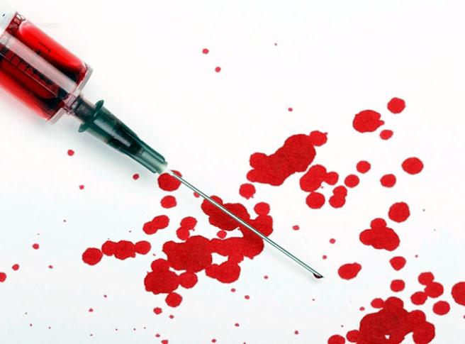 El origen del SIDA ¿Un arma para reducir la población?