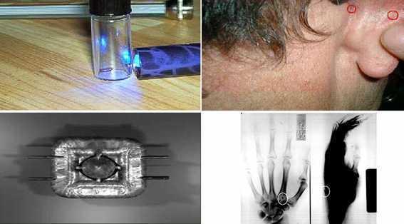 Implantes encontrados en personas abducidas
