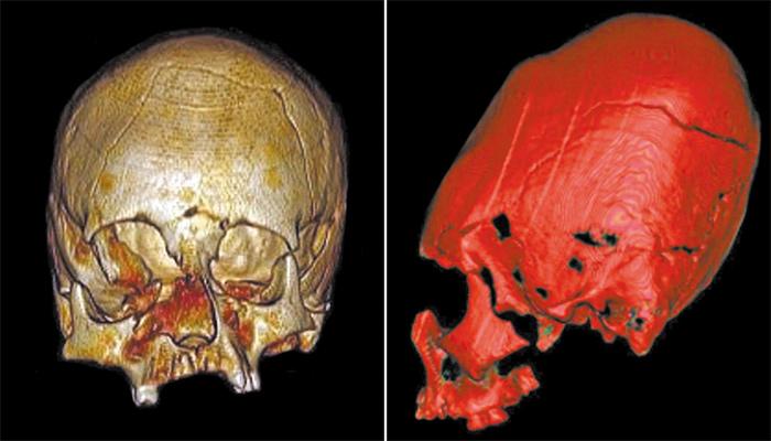 El enigma de los cráneos alargados de diferentes culturas.