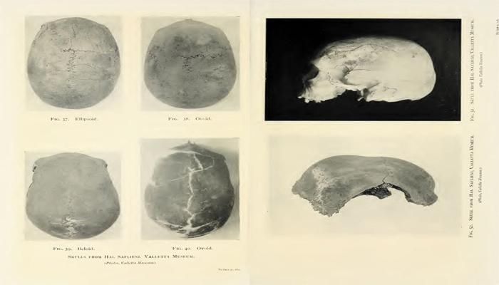 El enigma de los cráneos alargados de diferentes culturas