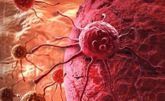 ¿Por qué se mantuvo secreta la verdadera causa del cáncer?