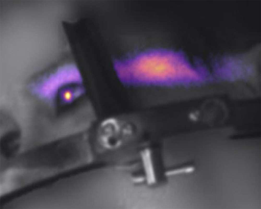 Médicos capturan luz generada en el globo ocular de un paciente por primera vez