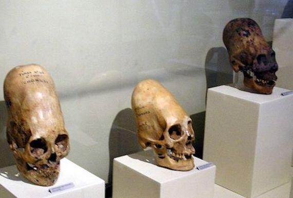 Los misteriosos cráneos alienígenas de la Antártida