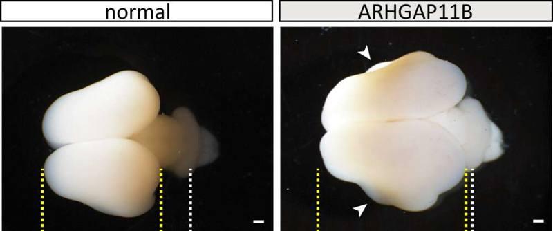 Investigadores han desarrollado cerebros de mono más grandes con genes humanos.