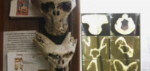 Cráneos extraterrestres encontrados en el Maletín