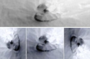 el objeto se encuentra en las Medusas Fossae en Marte